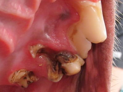 APet Tooth Extractions in Boxborough: Severe Cavity on Tooth